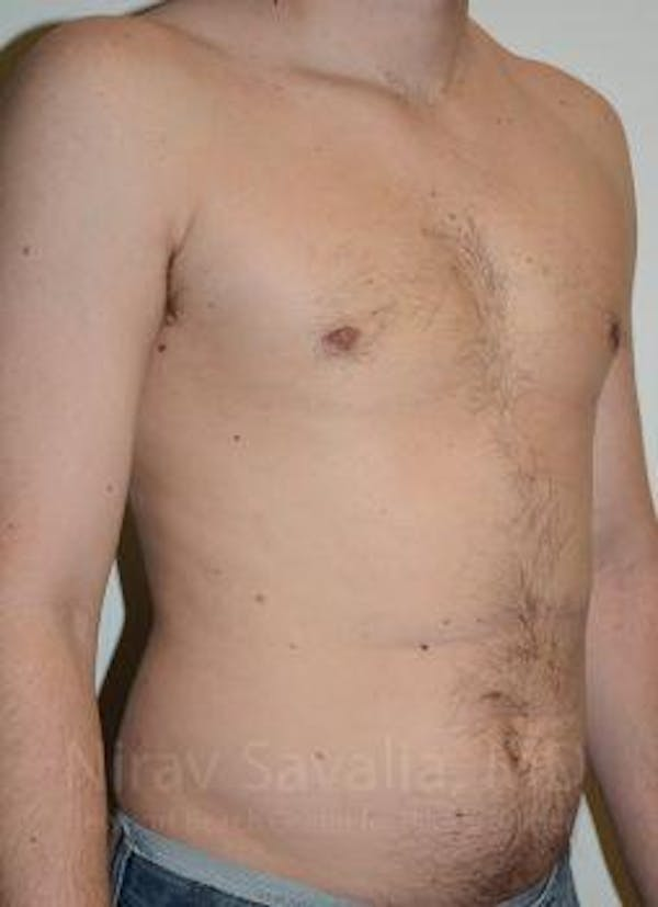 Male Breast Reduction Gallery - Patient 1655612 - Image 4