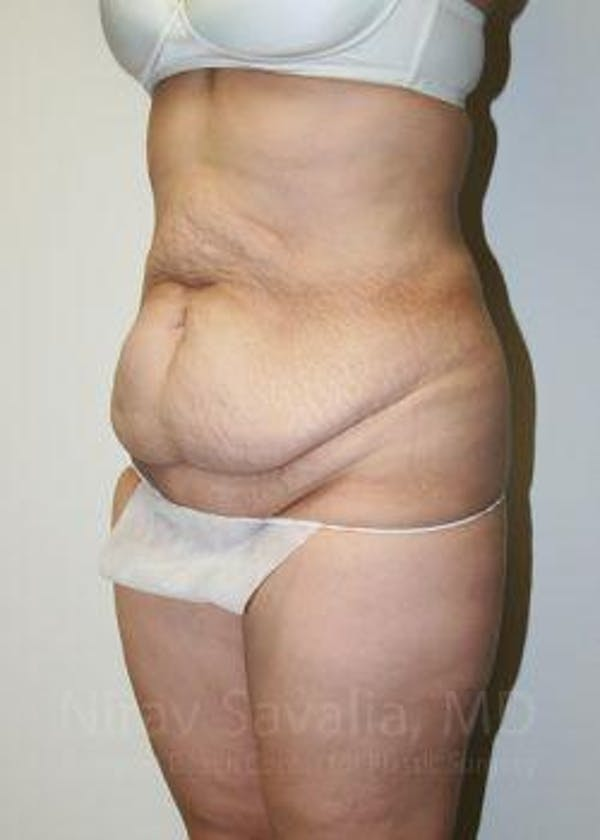 Body Contouring after Weight Loss Gallery - Patient 1655611 - Image 7