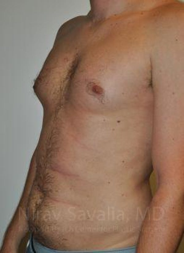 Male Breast Reduction Gallery - Patient 1655612 - Image 5