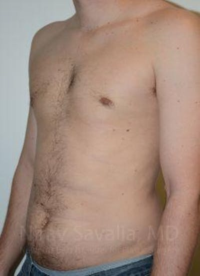 Male Breast Reduction Gallery - Patient 1655612 - Image 6