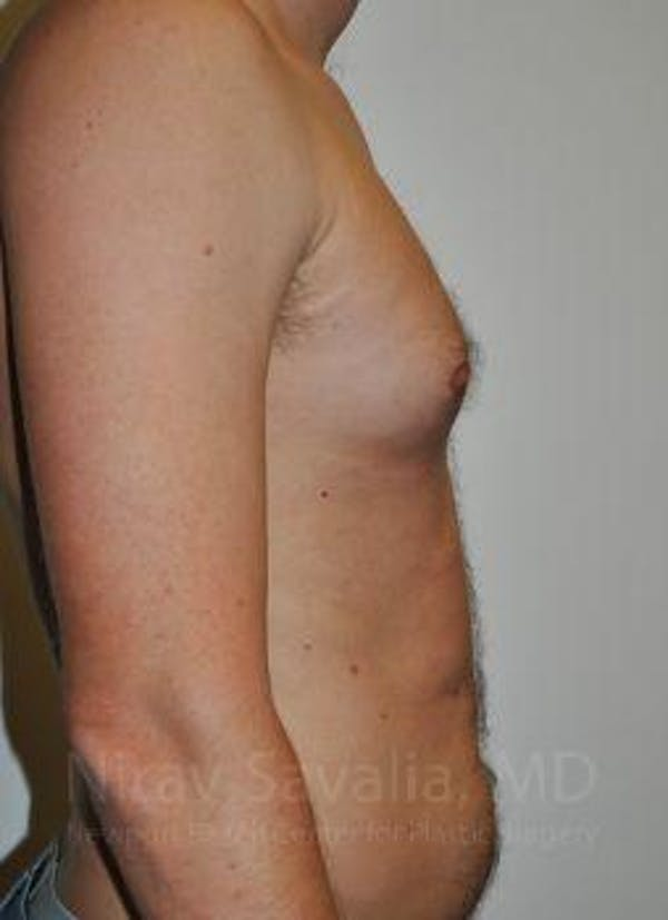 Male Breast Reduction Gallery - Patient 1655612 - Image 7