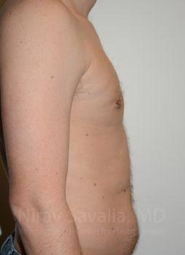 Male Breast Reduction Gallery - Patient 1655612 - Image 8