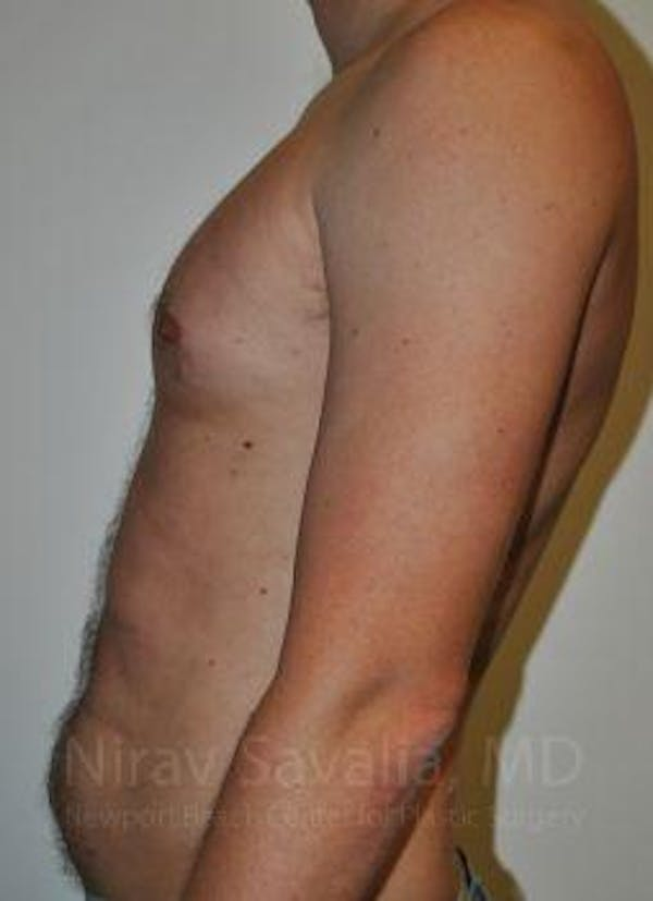 Male Breast Reduction Gallery - Patient 1655612 - Image 9