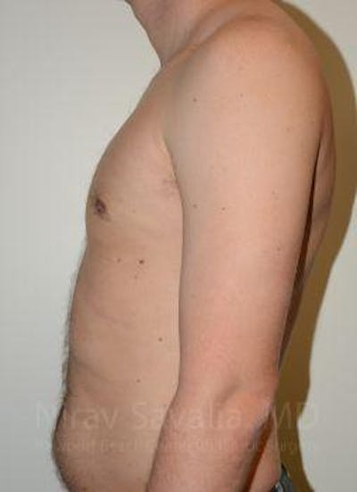 Male Breast Reduction Gallery - Patient 1655612 - Image 10