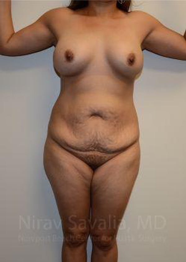 Mommy Makeover Gallery - Patient 1655618 - Image 1