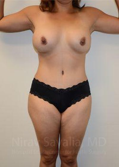 Mommy Makeover Gallery - Patient 1655618 - Image 2