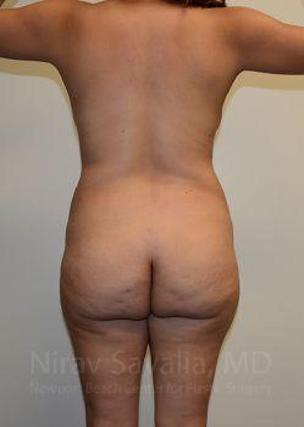 Mommy Makeover Gallery - Patient 1655618 - Image 3