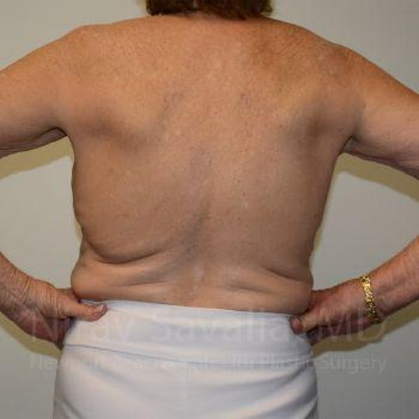 Body Contouring after Weight Loss Gallery - Patient 1655616 - Image 1