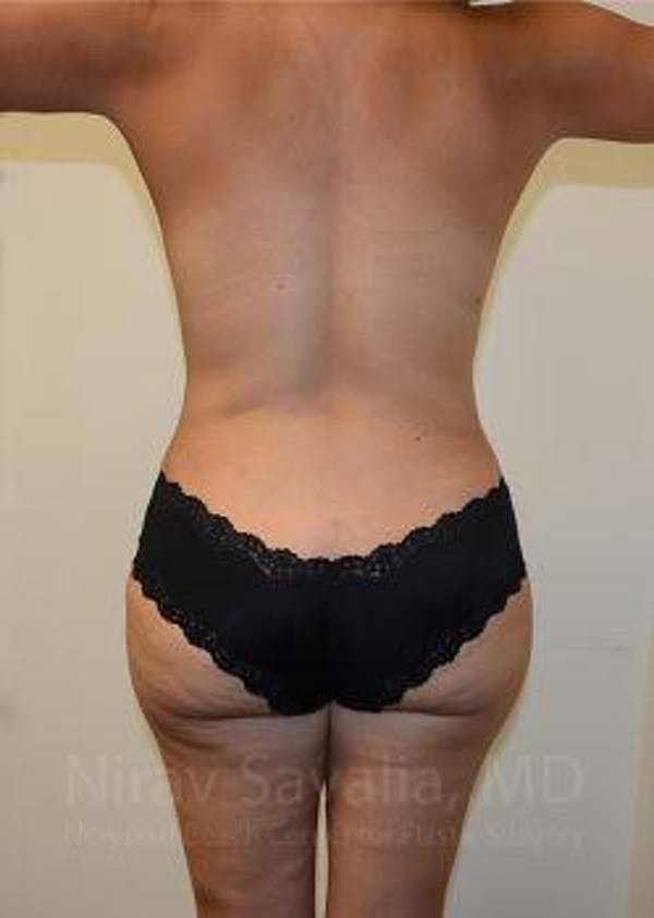 Mommy Makeover Gallery - Patient 1655618 - Image 4