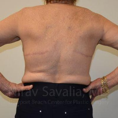 Body Contouring after Weight Loss Gallery - Patient 1655616 - Image 2