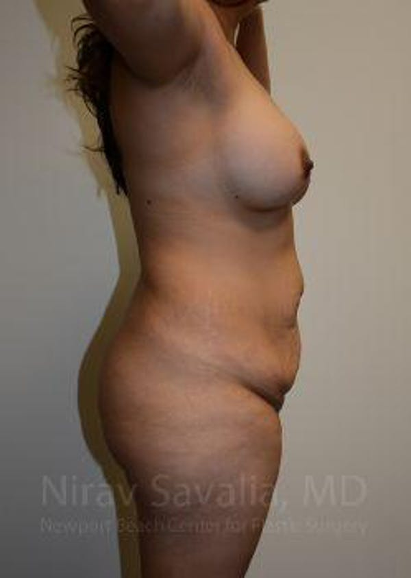 Mommy Makeover Gallery - Patient 1655618 - Image 5