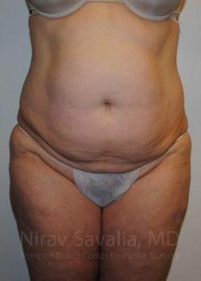 Abdominoplasty / Tummy Tuck Gallery - Patient 1655617 - Image 1