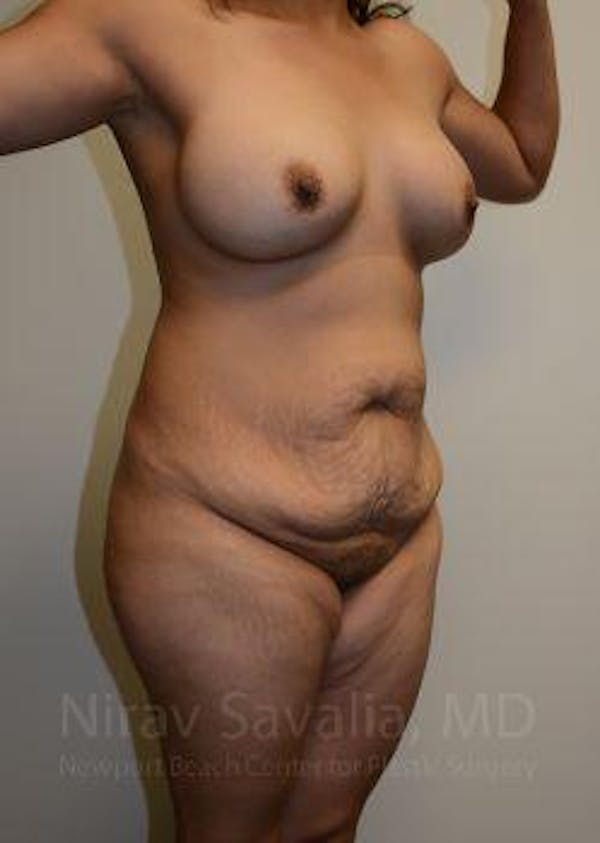 Mommy Makeover Gallery - Patient 1655618 - Image 9