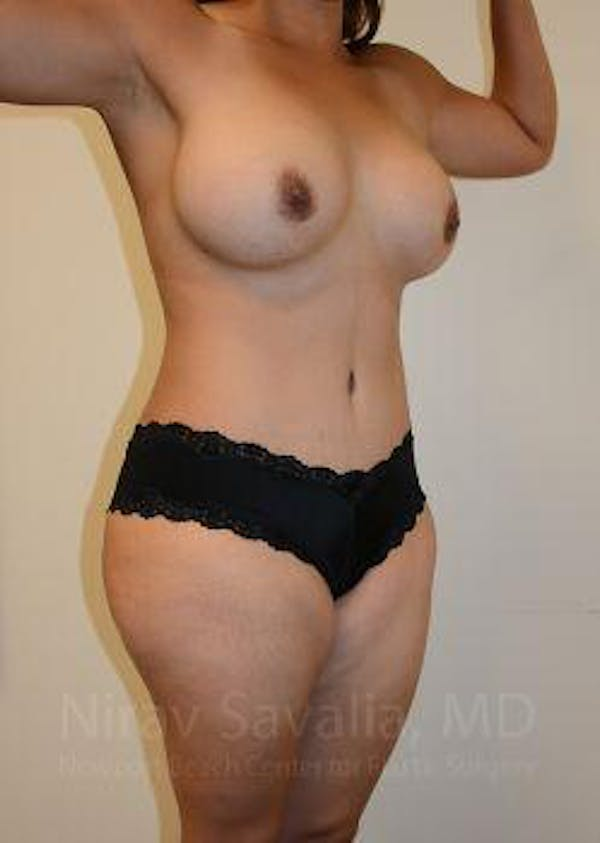 Mommy Makeover Gallery - Patient 1655618 - Image 10