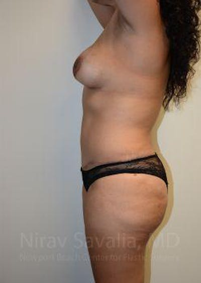 Liposuction Gallery - Patient 1655619 - Image 4