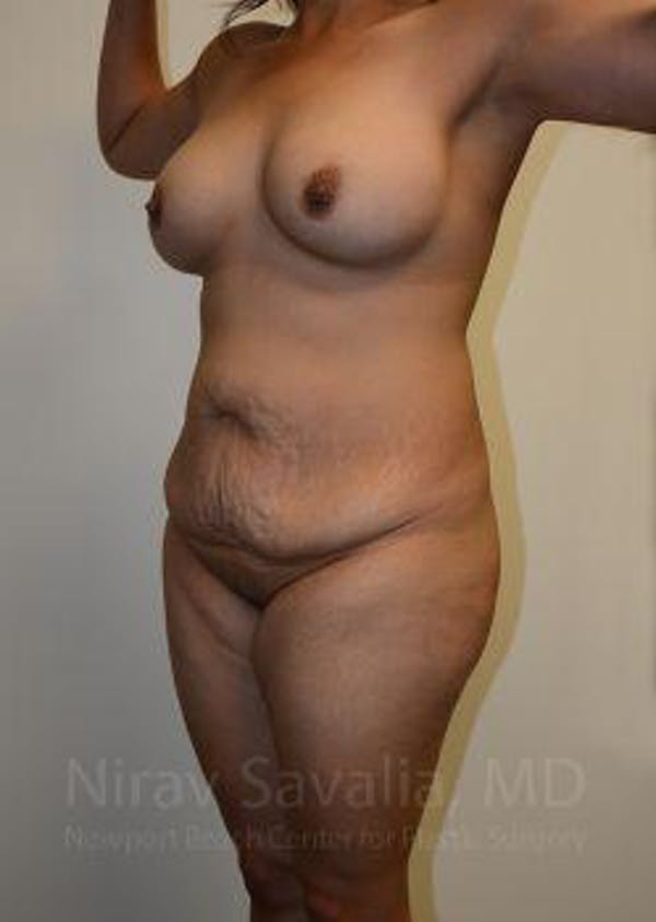 Mommy Makeover Gallery - Patient 1655618 - Image 11