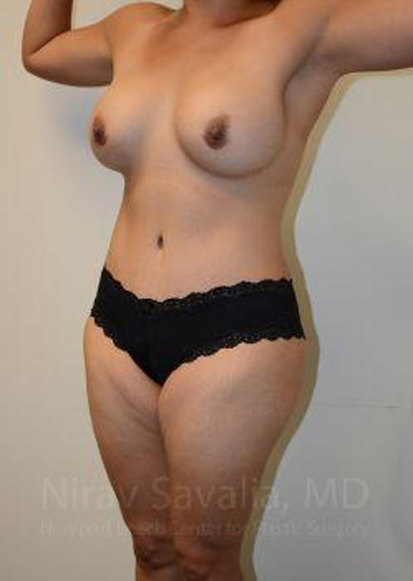 Mommy Makeover Gallery - Patient 1655618 - Image 12