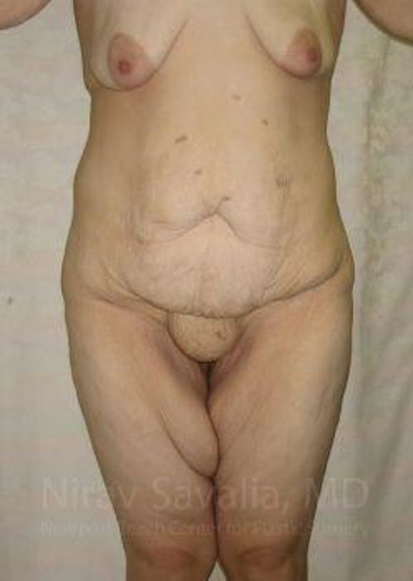 Body Contouring after Weight Loss Gallery - Patient 1655620 - Image 1