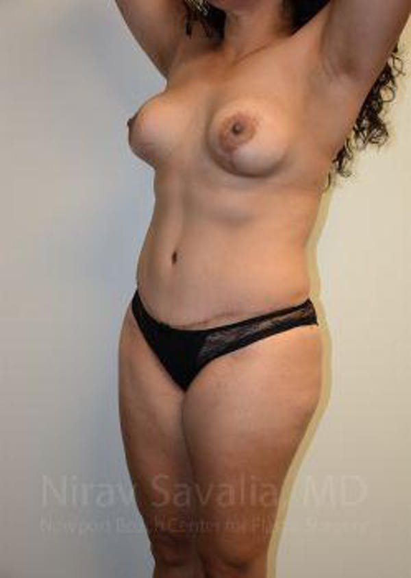 Liposuction Gallery - Patient 1655619 - Image 8