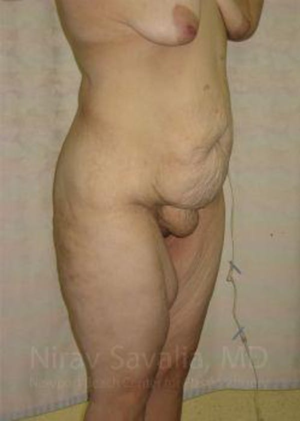 Body Contouring after Weight Loss Gallery - Patient 1655620 - Image 3
