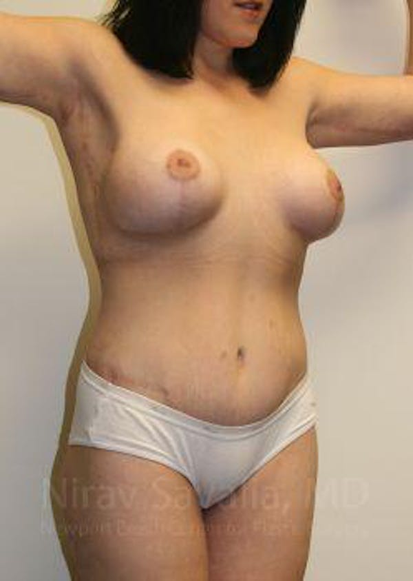 Body Contouring after Weight Loss Gallery - Patient 1655620 - Image 4