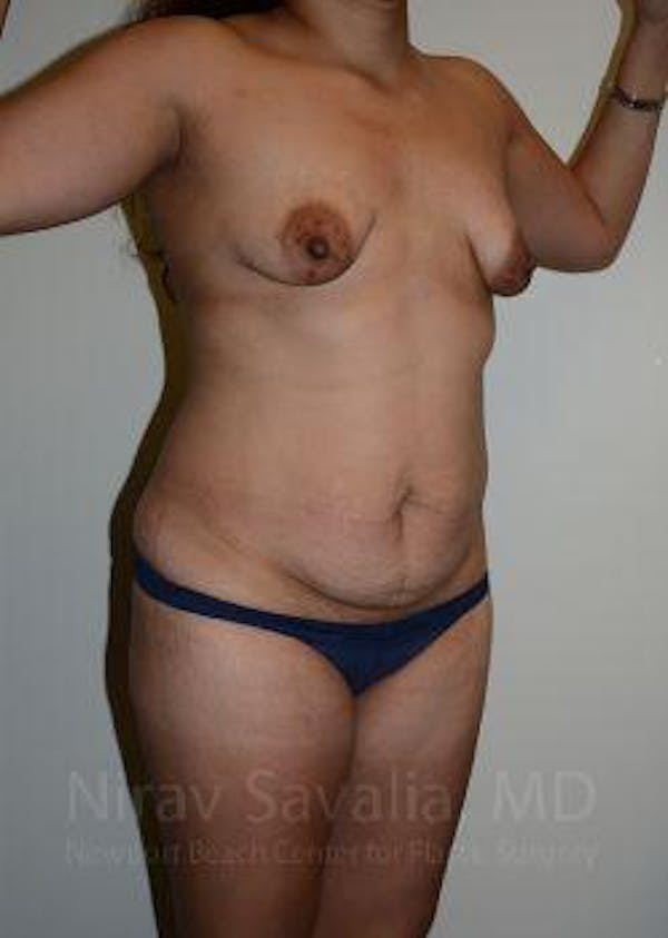 Liposuction Gallery - Patient 1655619 - Image 9