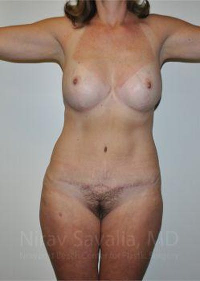 Mommy Makeover Gallery - Patient 1655623 - Image 2