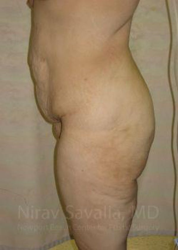 Body Contouring after Weight Loss Gallery - Patient 1655620 - Image 9