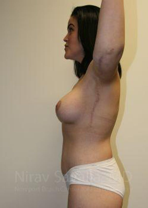 Body Contouring after Weight Loss Gallery - Patient 1655620 - Image 10