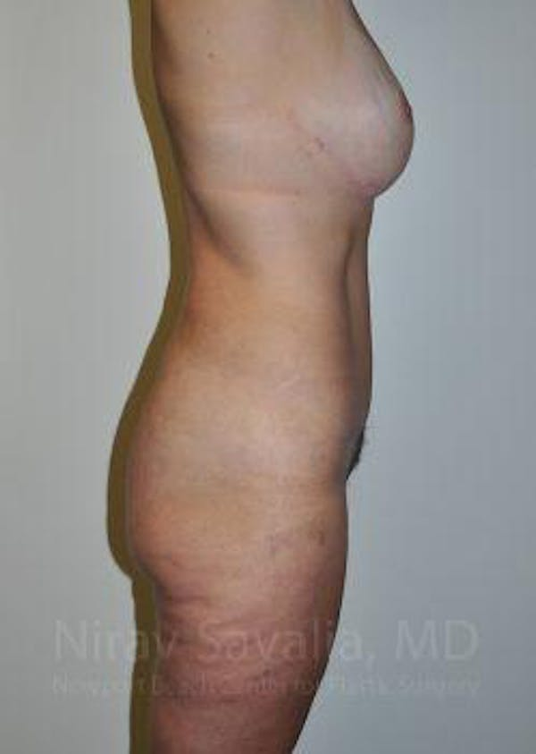 Mommy Makeover Gallery - Patient 1655623 - Image 6
