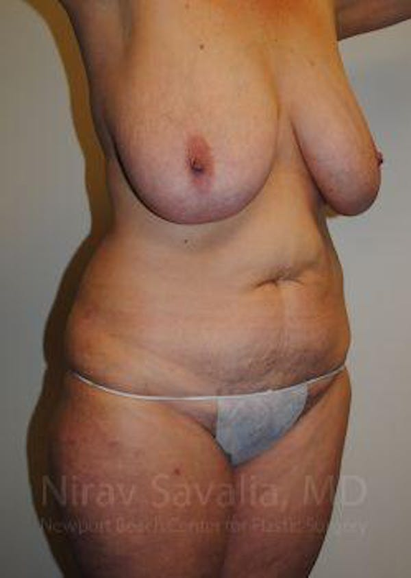 Mommy Makeover Gallery - Patient 1655623 - Image 7