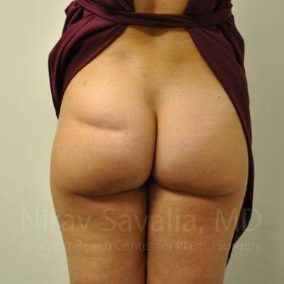 Liposuction Gallery - Patient 1655622 - Image 1