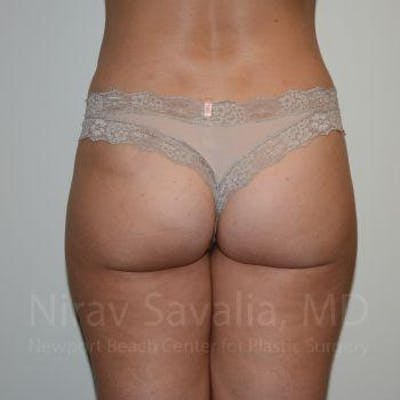Liposuction Gallery - Patient 1655622 - Image 2