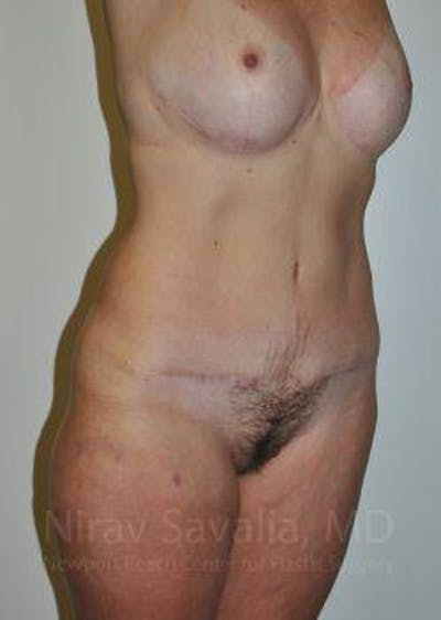 Mommy Makeover Gallery - Patient 1655623 - Image 8
