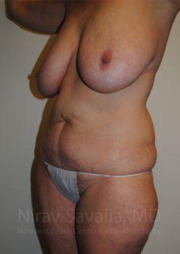 Mommy Makeover Gallery - Patient 1655623 - Image 9