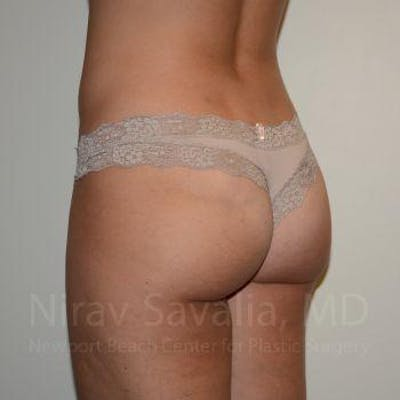 Liposuction Gallery - Patient 1655622 - Image 4