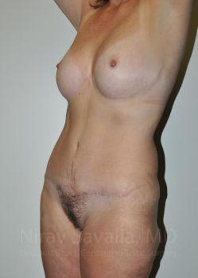 Mommy Makeover Gallery - Patient 1655623 - Image 10