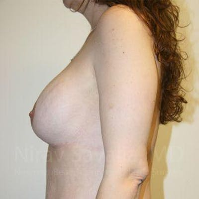 Body Contouring after Weight Loss Gallery - Patient 1655624 - Image 6