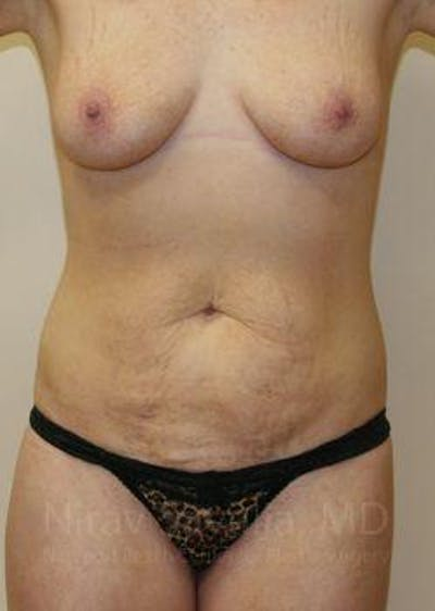 Abdominoplasty / Tummy Tuck Gallery - Patient 1655627 - Image 1