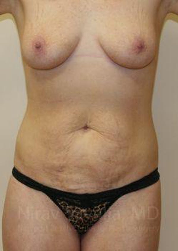 Abdominoplasty / Tummy Tuck Gallery - Patient 1655627 - Image 1