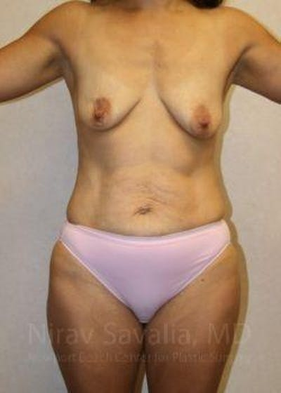 Mommy Makeover Gallery - Patient 1655626 - Image 1