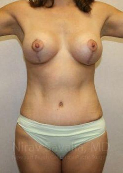 Mommy Makeover Gallery - Patient 1655626 - Image 2