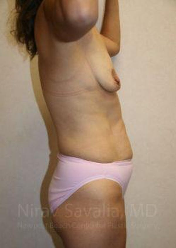 Mommy Makeover Gallery - Patient 1655626 - Image 3