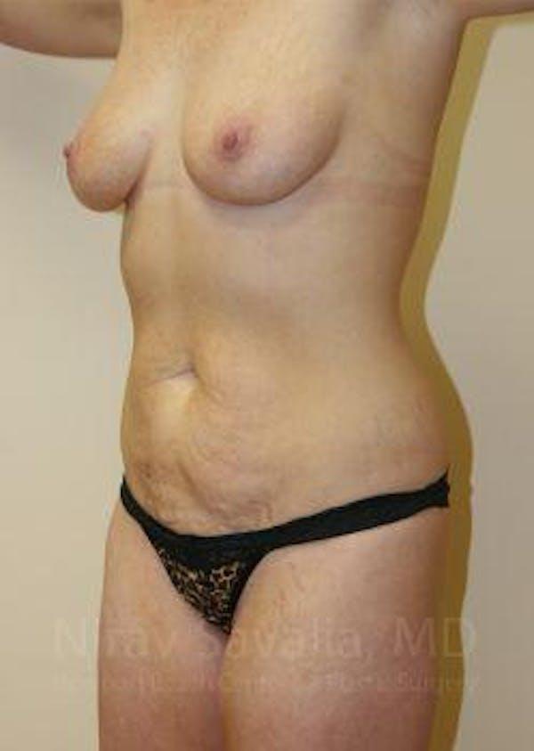 Abdominoplasty / Tummy Tuck Gallery - Patient 1655627 - Image 5