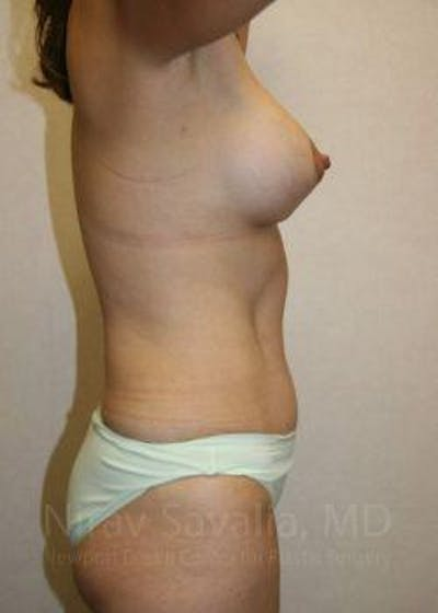 Mommy Makeover Gallery - Patient 1655626 - Image 4
