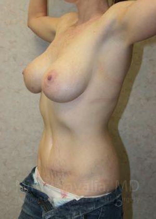 Abdominoplasty / Tummy Tuck Gallery - Patient 1655627 - Image 6