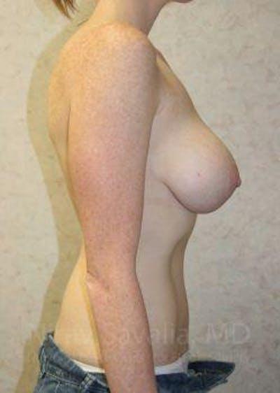 Abdominoplasty / Tummy Tuck Gallery - Patient 1655627 - Image 8