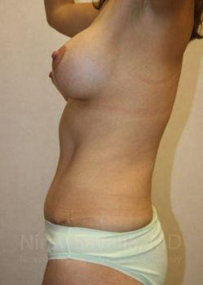 Mommy Makeover Gallery - Patient 1655626 - Image 8