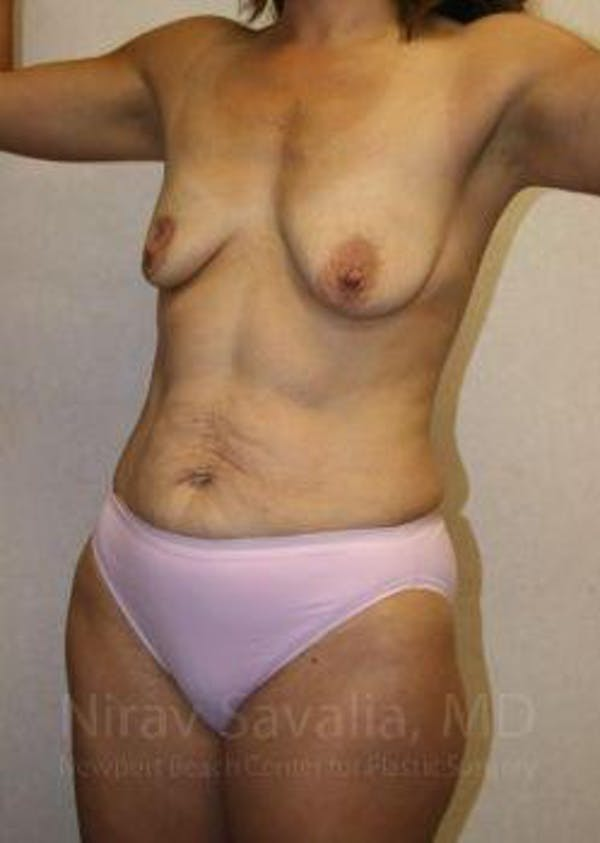 Mommy Makeover Gallery - Patient 1655626 - Image 9