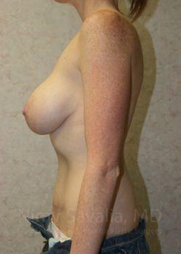 Abdominoplasty / Tummy Tuck Gallery - Patient 1655627 - Image 10